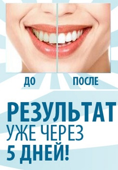 Быстрое Отбеливание Зубов - Александров